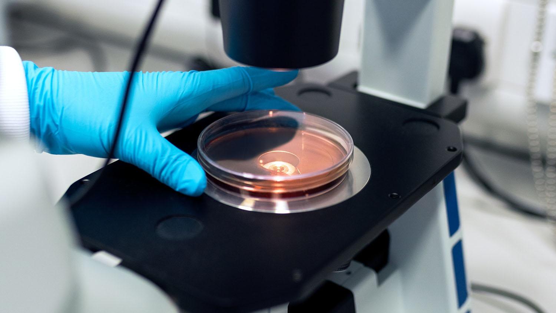 researcher places petri dish under microscope